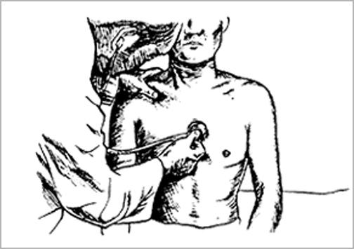 頸動脈の聴診