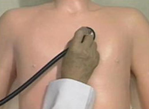 肺動脈弁部位の聴診