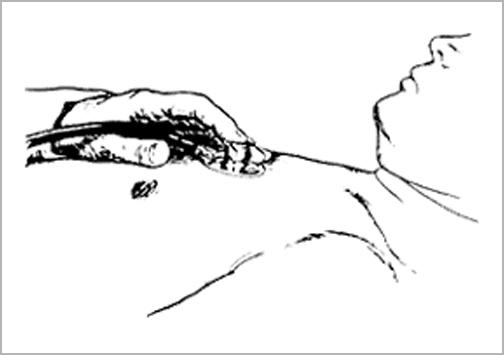 II音の固定性分裂の聴診