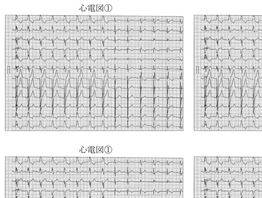 波形 種類 心電図